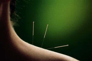 acupuncture 2